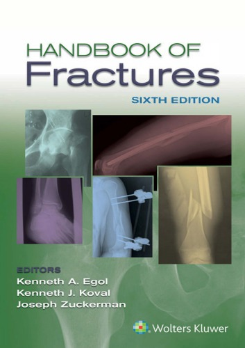 Handbook of Fractures 6th Edition